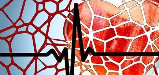 Vernauwing in ader door cholesterol-ophoping